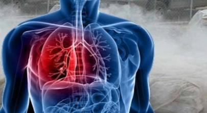 Se actualiza el Cuadro de enfermedades profesionales con la incorporación del cáncer de pulmón por inhalación de polvo de sílice libre.